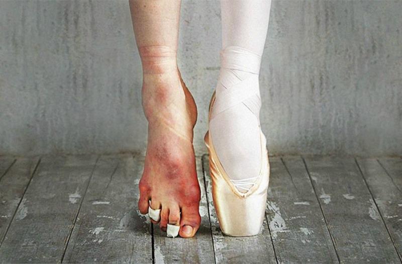 Ballet foto 2