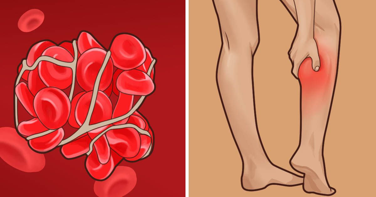 sintomas-coagulos-1
